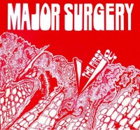 Major Surgery - The First Cut